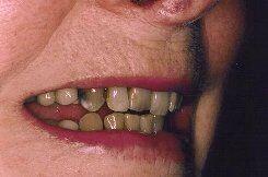 older teeth_1_ before smile 1