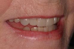 older teeth  after smile
