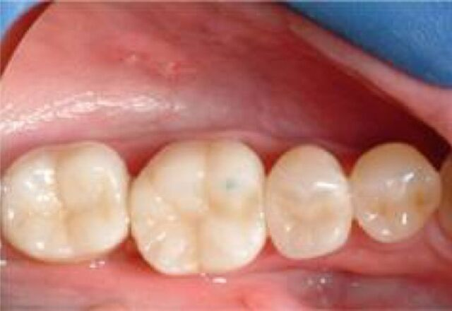 white_fillings_after_640x440